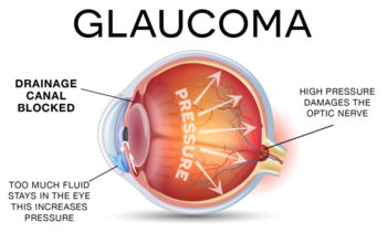 QBioMed (QBIO): Counter Punching Glaucoma with Powerful Combinations